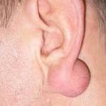 на фото в мочке уха шарик