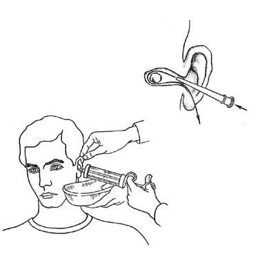 Чистка уха перекисью водорода в домашних условиях ольга симченко.