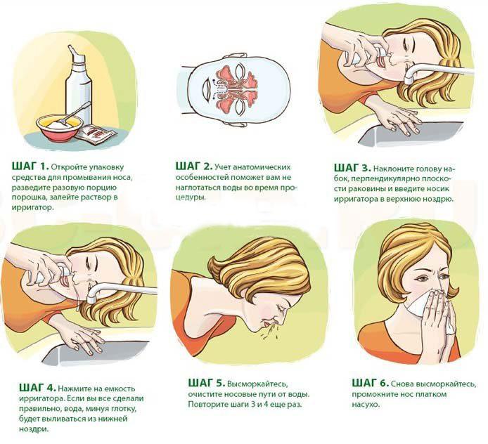 Изображение-инструкция: как правильно промывать нос соляным раствором