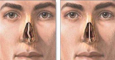 Искривление носовой перегородки - одна из причин заложенности носа без насморка