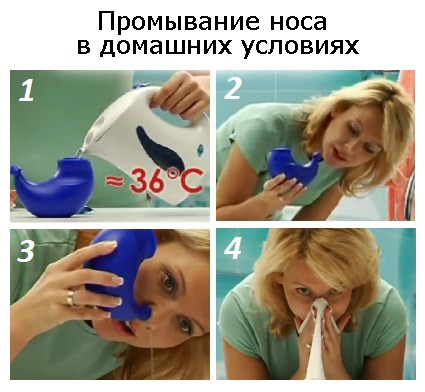 Чем эффективно промывать нос при насморке