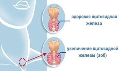 При заболевании щитовидки некоторые люди ощущают ком в горле, который мешает глотать и дышать