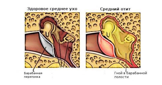 Выделения гноя из ушного канала при отите среднего уха