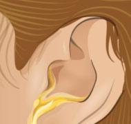 О чем говорят жидкие выделения из ушей