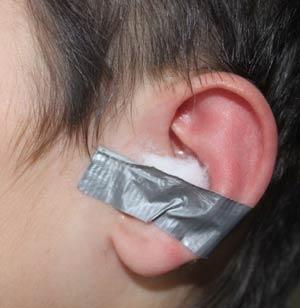 как применять борную кислоту в ухо