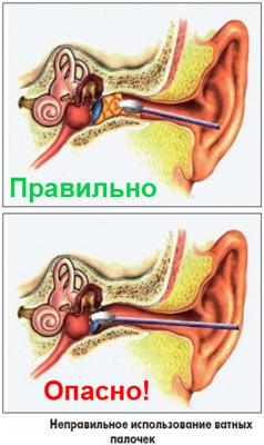 на фото показано, как нельзя чистить серу в ушах