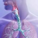 симптомы и лечение хронического бронхита у взрослых