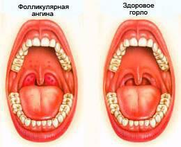 Прыщи в горле - признак фолликулярной ангины