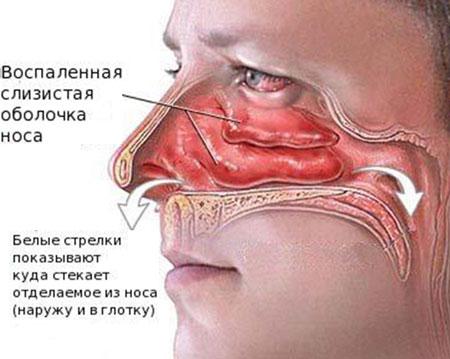 Почему в горле скапливается слизь