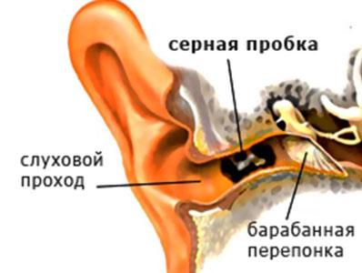 Какие причины вызывают щелк и треск в ушах