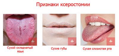 Причины, вызывающие пересыхание слизистой оболочки рта