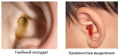 Процесс выделения из уха жидкости, который свидетельствует о наличии в организме воспалительного процесса